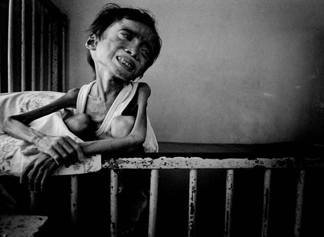 Young malnutrition victim Joel Abong sits in a crib at the Corazon Locsin Montelibano Memorial Regional Hospital in Negros Occidental. Joel was plagued by illnesses through his short life. His condition was not helped when sugar cane prices fell to a near all-time low in the mid-1980's, causing workers like Joel's father to lose their jobs. Dozens of children, including Joel Abong, died on Negros Occidental in 1985. May 4, 1985  Photos Copyright © 2011/The Pictorial Collection, Bancroft Library, University of California, Berkeley. All rights reserved.